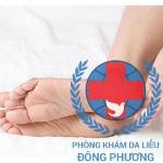 Bệnh chàm gót chân chia sẻ cách điều trị tốt nhất