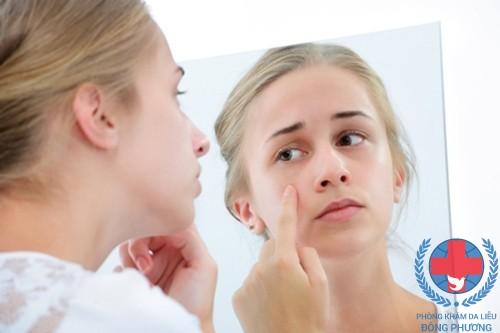 Dị ứng da kéo dài có thể dẫn đến bội nhiễm