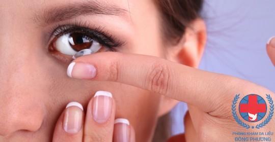 Nguyên nhân bệnh ngứa mi mắt do dùng kính áp tròng