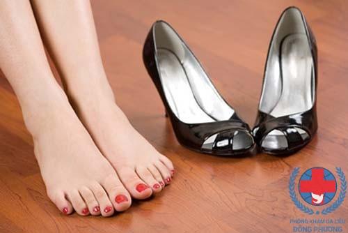 Đứng lâu có thể dẫn đến bệnh chàm gót chân