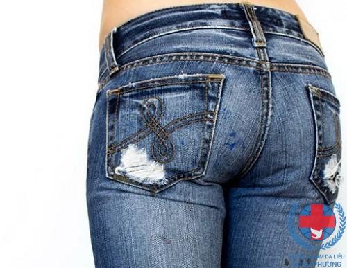 Không mặc quần bó để hạn chế bệnh ngứa ở háng