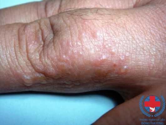 Bệnh ghẻ bội nhiễm là gì ? Dấu hiệu điển hình của ghẻ bội nhiễm
