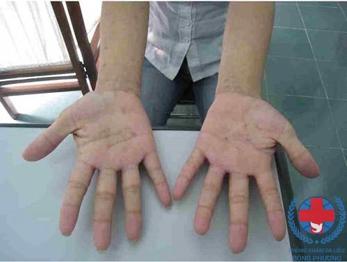 Lòng bàn tay dễ bị bệnh ghẻ bội nhiễm