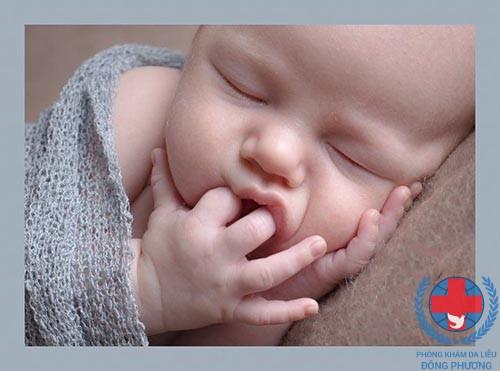 Dị ứng da mặt ở trẻ sơ sinh những thông tin dành cho mẹ