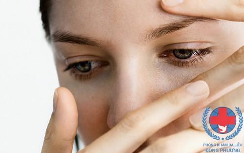 1 trong các biến chứng của viêm da cơ địa ở mặt là ảnh hưởng đến mắt