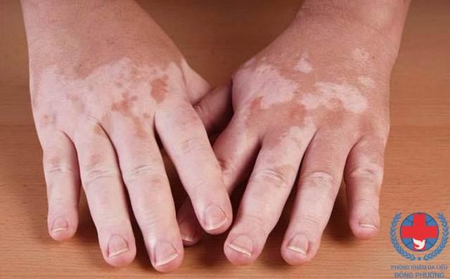 Khám phá bệnh bạch biến có nguy hiểm không ?