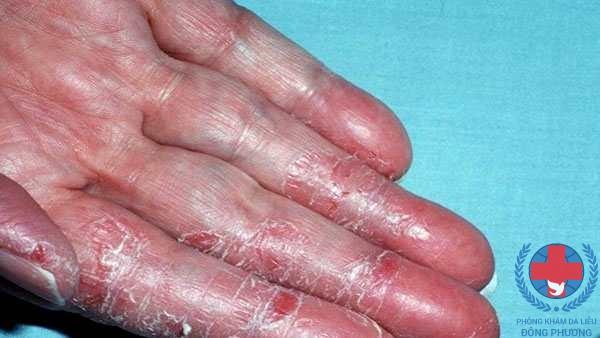 Bệnh chàm tăng sừng là gì ? Điều trị bệnh này sao ?