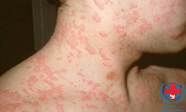 Bệnh ngứa phát ban làm thế nào để hết ngứa ?