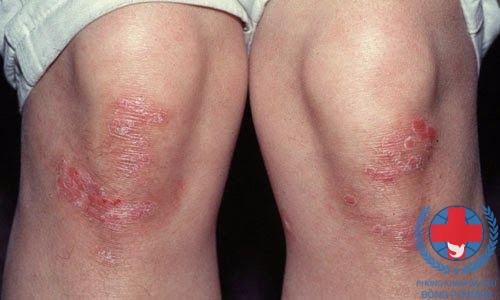 Yếu tố di truyền có liên quan trong bệnh vảy nến bẩm sinh