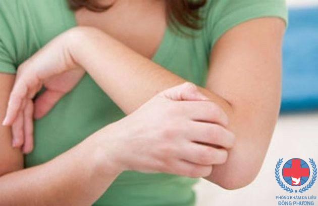 Chữa bệnh chàm tăng sừng những điều cần biết