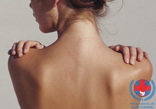 Bệnh ngứa lưng do thời tiết hanh khô