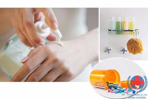 Thuốc chữa bệnh nấm da hữu hiệu người bệnh nên biết