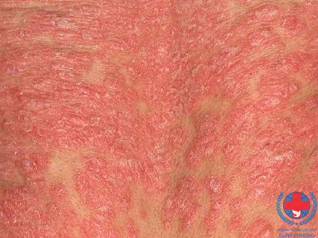 Bệnh vảy nến thể đỏ da cùng tìm hiểu đặc điểm của bệnh