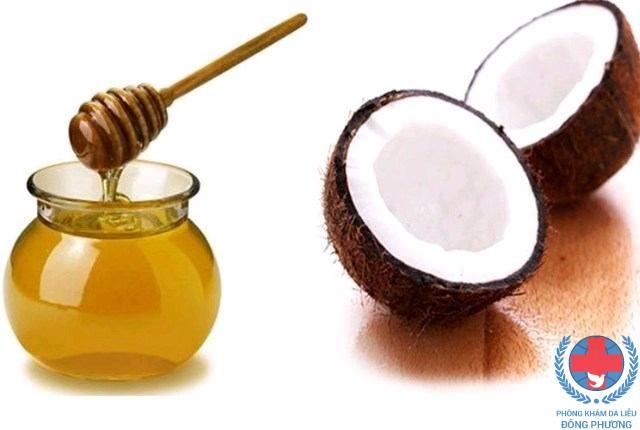 Phương pháp trị nám da bằng dầu dừa kết hợp với mật ong