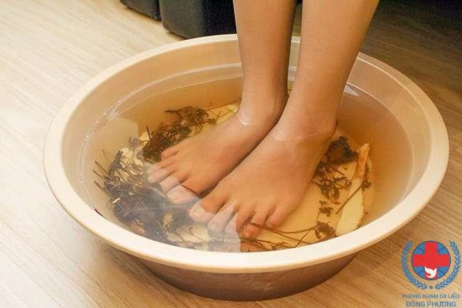Ngâm lá trầu không phương pháp chữa bệnh bạch biến ở chân