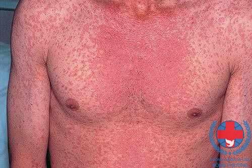 Chia sẻ hình ảnh bệnh vảy nến thể đỏ da toàn thân