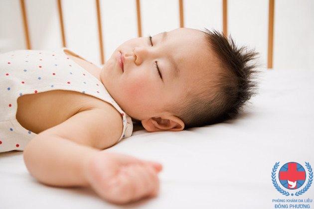 Những dấu hiệu nhận biết lang ben ở trẻ sơ sinh