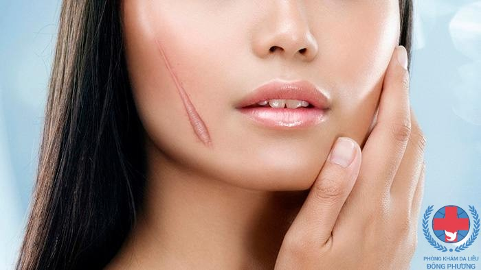 Nấm da có để lại sẹo không thưa bác sĩ ?