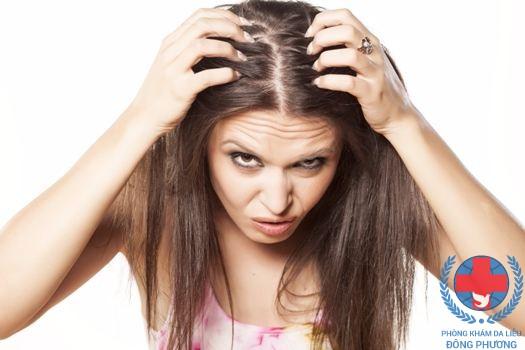 Khi bị nấm da đầu gây rụng tóc cần làm gì