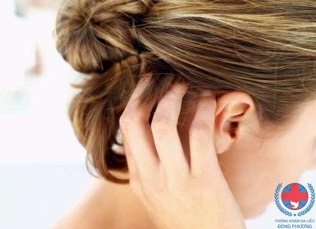 Nấm da đầu gây rụng tóc – những nguyen nhân dẫn đến