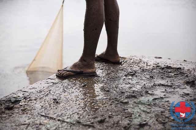 Viêm da cơ địa ở chân do tiếp xúc với nước bẩn