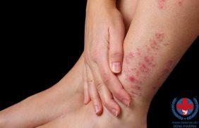 Chia sẻ về viêm da cơ địa ở chân