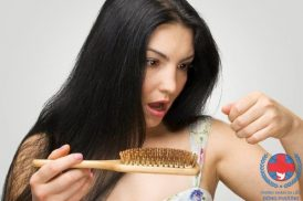 Bệnh nấm da đầu có lây không cùng khám phá