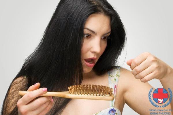 Bệnh nấm da đầu có lây không vậy ?