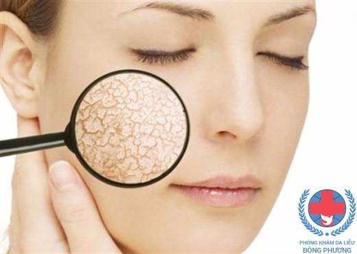 Da dị ứng sữa rửa mặt có dấu hiệu là da khô bong tróc
