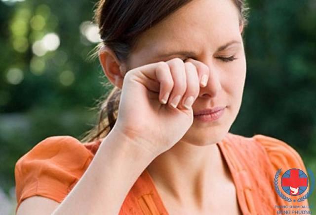Dị ứng da quanh mắt phải làm thế nào đây ?