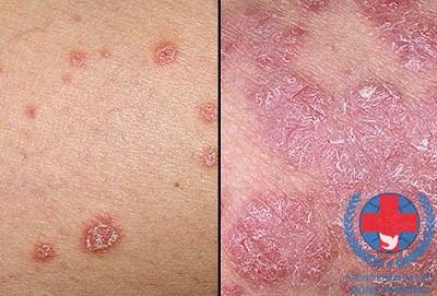 Bệnh vảy nến nên chữa ở đâu tốt nhất?