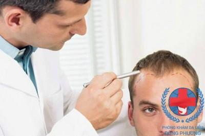Nên chữa rụng tóc ở đâu tốt nhất?