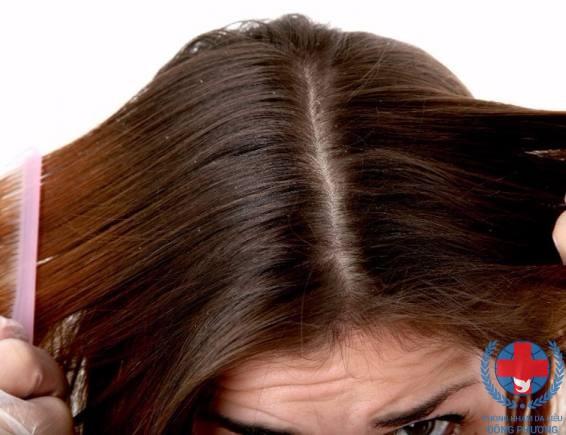 Viêm da đầu gây rụng tóc nên điều trị như thế nào ?
