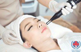 Những điều cần biết về trị tàn nhang bằng laser