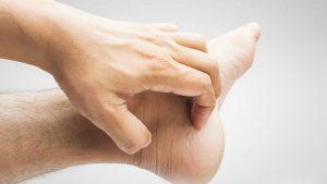 Khám phá bệnh nấm da bàn chân