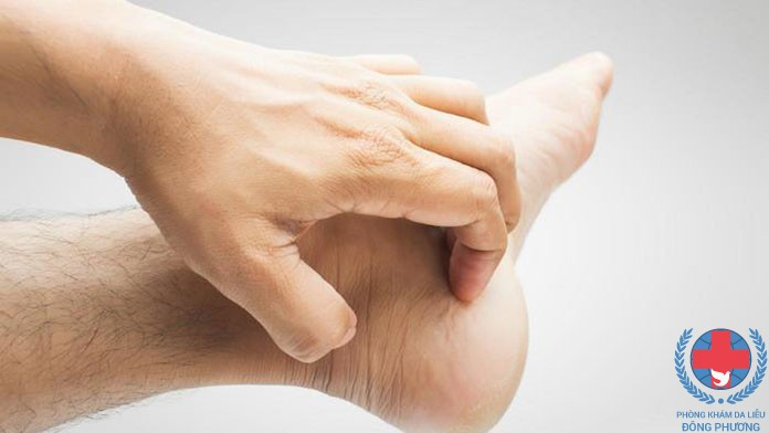 Bệnh nấm da bàn chân những lưu ý cần quan tâm