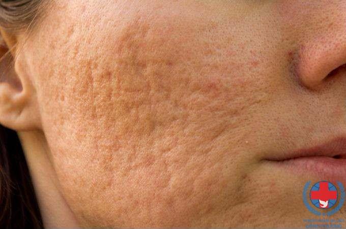 Viêm nang lông là gì ? Những thông tin cần biết