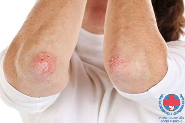 Bệnh nấm da bội nhiễm do đâu hình thành và nên làm gì khi mắc bệnh ?