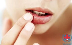 Nguyên nhân nào dẫn đến bệnh ngứa môi