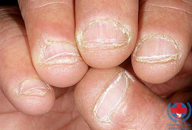 Bệnh vảy nến ở chân tay và phương hướng điều trị