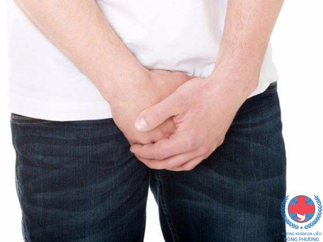 Bệnh nấm da ở bộ phận sinh dục những thông tin về bệnh