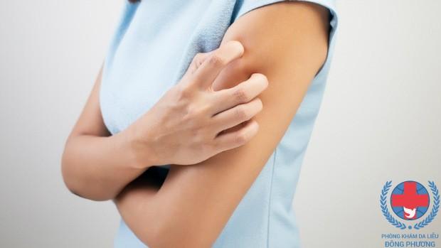 Làm sao để phòng tránh bệnh ghẻ