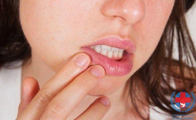 Sùi mào gà ở miệng biểu hiện thế nào, xử trí ra sao?