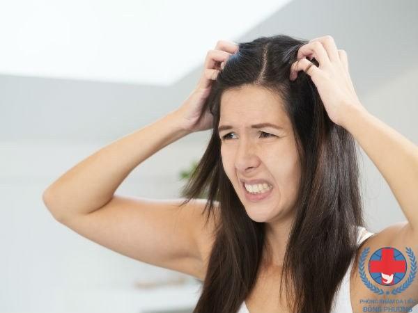 Bạn biết gì về bệnh viêm da đầu có mủ