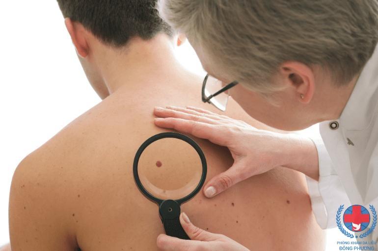 Làm sao để loại bỏ viêm da dạng ecpet ?