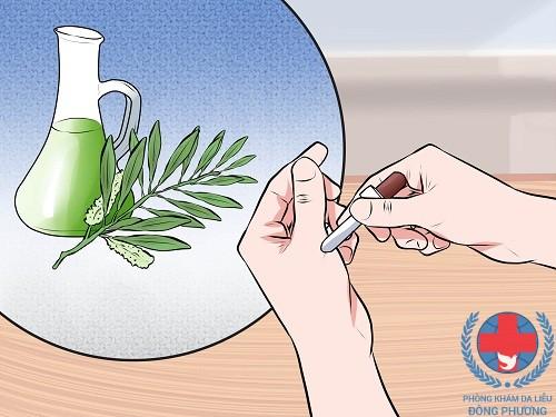 Mụn cơm ở tay do đâu mà có, chữa thế nào?