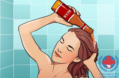 Bất ngờ từ việc trị rụng tóc bằng bia