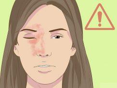 Bị zona thần kinh ở mắt phải làm sao?