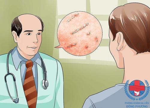 Cách trị bệnh ghẻ ngứa nào tốt nhất?
