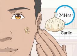 Mẹo trị mụn cơm ở mắt bằng tỏi